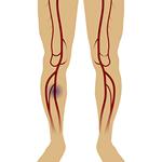足の血行の流れが悪くなる(糖尿病足病変)